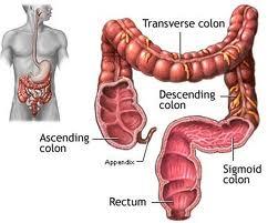 obat tumor usus
